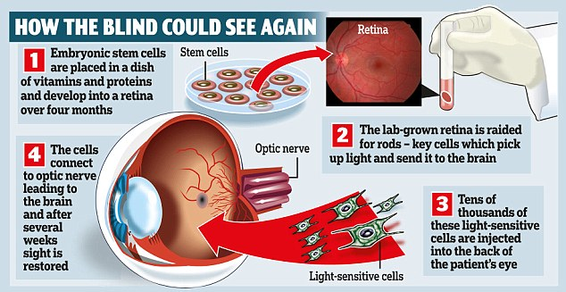 09n-STEM CELL eyes